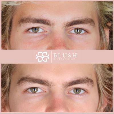 Undereyes Blush