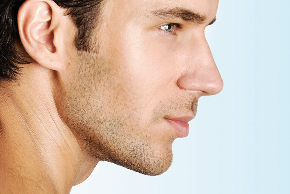 Everything you need to know about Kybella