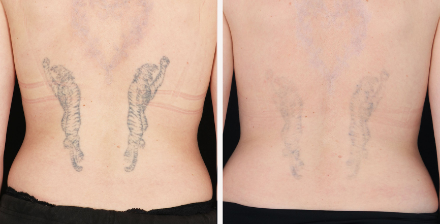 PicoWay Laser - Tattoo Removal