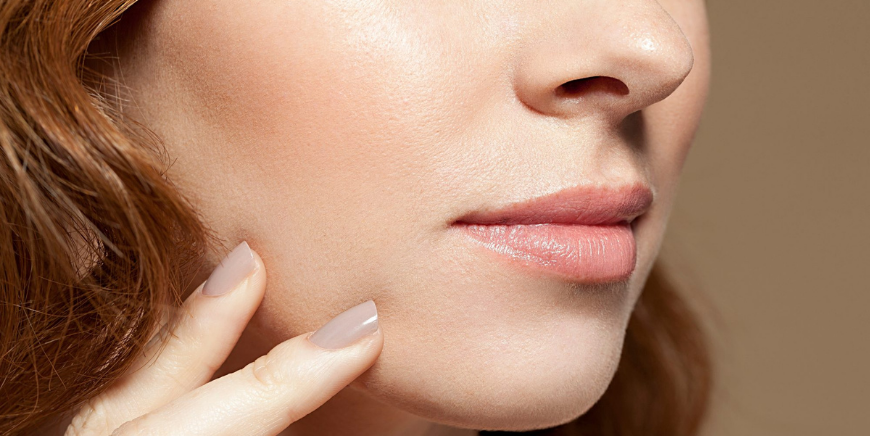 Lifted Cheeks With Dermal Fillers